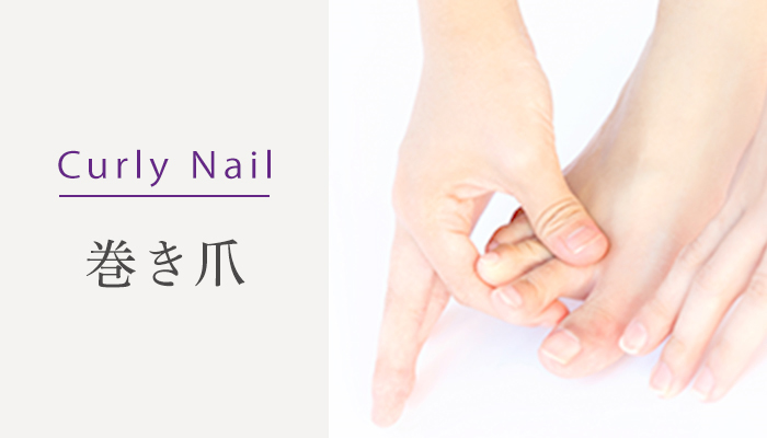 Curly Nail 巻き爪